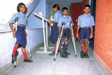 polio-affacted
